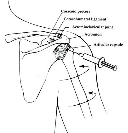 Как и чем лечить боль в шее и в плечевом суставе